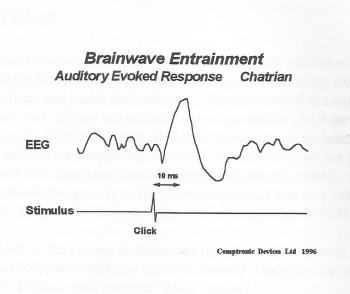 Brainwave entrainment - auditory evoked response to isochronic tones